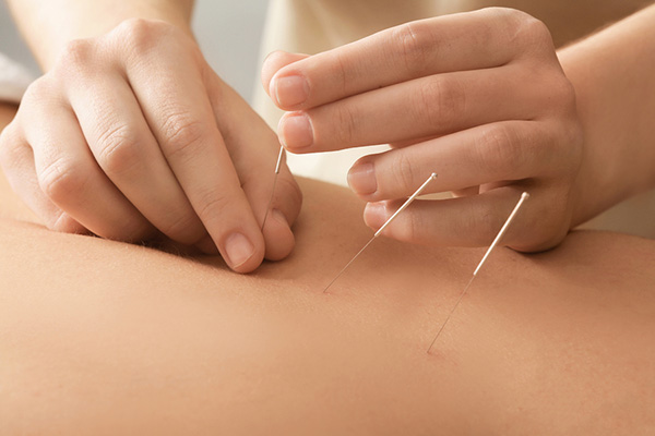Chiropractor applying needles